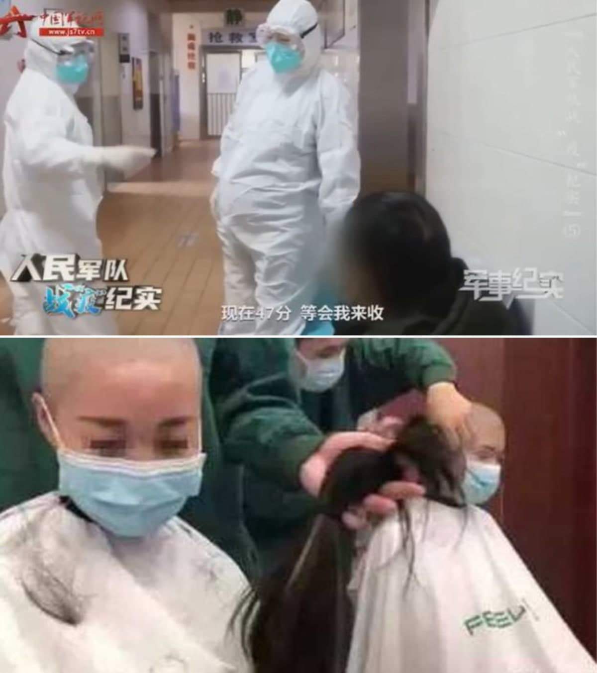 Freshly-shaved nurse cries at her treatment.